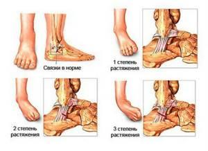 Растяжение лодыжки: причины и виды травмы, правильное оказание первой помощи, лечение в домашних условиях