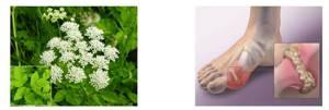Эффективность применения сныти для лечения подагры: полезные свойства растения и его влияние на заболевание, рецепты целебных средств и рекомендации по их применению