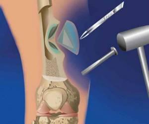 Лечение остеомиелита народными средствами: эффективные методы и рецепты нетрадиционной медицины, правила и схемы их применения, профилактика болезни
