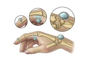 Лечение гигромы народными средствами: популярные рецепты, основные причины патологии, симптомы и выбор оптимальной терапии для терапии в домашних условиях