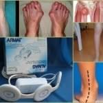 Аппарат Алмаг для лечения суставов: особенности и виды моделей, показания и противопоказания, рекомендации по применению в домашних условиях