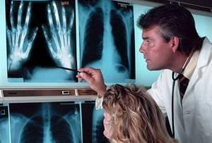 Артропатия: виды и причины развития заболевания у взрослых и детей, патологические симптомы и способы диагностики, методы лечения и профилактики, прогноз для жизни