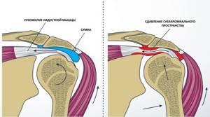 Артроскопия плечевого сустава: показания к операции и ее преимущества, подготовительные процедуры и техника проведения, противопоказания и возможные осложнения, цена и отзывы