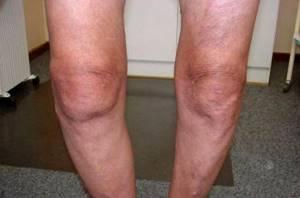 Гонартроз коленного сустава 1 степени: современные методы терапии и применение компрессов, методы физиотерапии, клиническая картина и признаки патологии