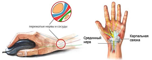 Немеют руки при беременности: о чем говорит данный симптом, диагностика болезни, лечение и профилактика народными и медицинскими средствами