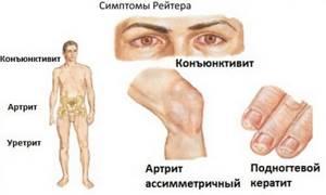 Болезнь Рейтера: формы, признаки и описание патологии, способы терапии, особенности диагностики, возможные осложнения и профилактические действия