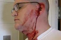 Перелом уха: классификация и причины повреждения ушной раковины, специфические симптомы и способы лечения, сроки восстановления, возможные осложнения и прогноз