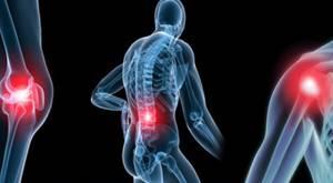 Генерализованный остеоартроз: классификация и причины развития заболевания, специфические симптомы, современные и народные методы лечения, профилактика недуга