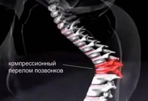 Компрессионный перелом позвоночника: что это такое и описание травмы, диагностирование и процесс восстановления, лечебные мероприятия и последствия