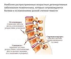 Боль в пояснице после поднятия тяжести: признаки и характер болевых ощущений, возможные заболевания и повод для обращения к врачу, способы диагностики и терапии