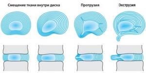 Экструзия межпозвонковых дисков: что это такое, признаки заболевания, лечебная тактика и меры профилактики болезни, разновидности аномалии