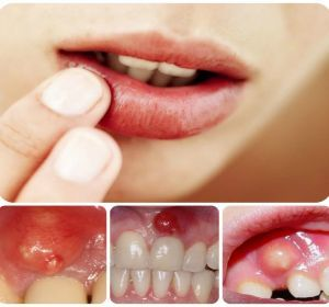 Периостит челюсти: описание и симптоматика заболевания, классификация и отличия от других патологий, медикаментозные и народные методы лечения, прогноз и опасность осложнения