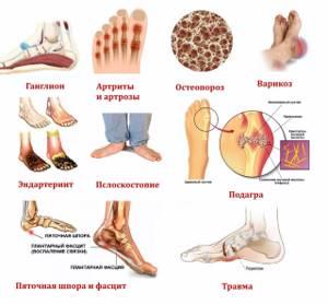 Болит подъем стопы: основные причины развития патологии, методы диагностики и терапии болезни, характер болевых ощущений и способы купирования боли