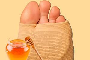 Мед при подагре: польза и вред, правила и общие принципы употребления, противопоказания и побочные действия