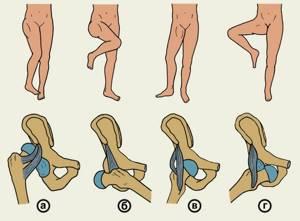 Вывих голени: первая помощь, алгоритм действий, лечение народными и медицинскими средствами, возможные осложнения и рекомендации врачей для профилактики