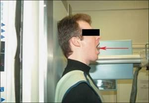 Рентген шейного отдела позвоночника: особенности диагностического метода, особенности подготовки к исследованию, что показывает снимок и кому противопоказана процедура
