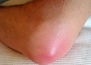 Воспаление локтевого сустава: в чем причины, какие симптомы, диагностика и лечение народными и медицинскими средствами, профилактика