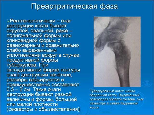 Воспаление тазобедренного сустава: классификация и причины заболевания у взрослых и детей, основные признаки и методы диагностики, современные и народные способы лечения
