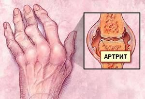 Артрум: состав и форма выпуска препарата, показания и противопоказания к приему, дозировка и побочные эффекты, отзывы о медикаменте