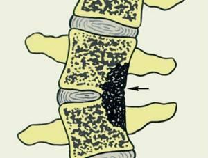 Туберкулезный спондилит позвоночника: причины и клиническая картина заболевания, стадии и лечебная тактика, современная диагностика