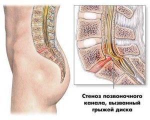 Стеноз позвоночного канала: что это такое, виды, причины развития, симптомы и лечение, возможные осложнения и профилактика