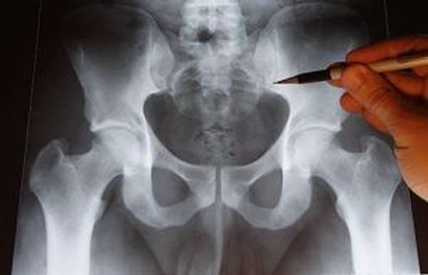 Перелом костей таза: причины и характер повреждения, симптомы и первая помощь, методы диагностики и лечение консервативным и хирургическим методом возможные последствия и рекомендации по восстановлению