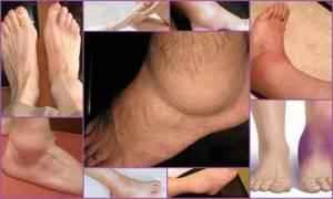 Синовит голеностопного сустава: разновидности патологии и симптомы, медикаментозная и народная терапия, прогноз и профилактика