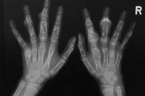 Хондрома: что это такое, причины, симптомы, диагностика заболевания, как предупредить, лечение и реабилитация после хирургического вмешательства