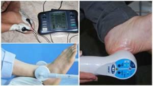 Физиолечение пяточной шпоры: описание всех методов, терапия и УВТ, чем лечить недуг и какие процедуры выбрать