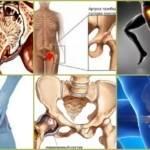 Артроз тазобедренного сустава 2 степени: причины возникновения патологии и профилактические меры, не медикаментозная терапия и лекарства