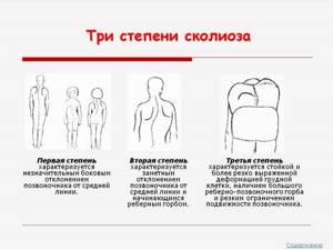 Сколиоз 3 степени: можно ли вылечить, симптоматика и признаки патологии, методы терапии и профилактика осложнений