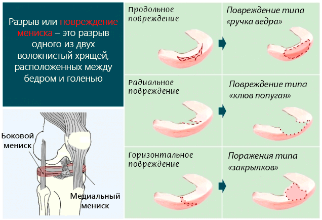 Менисцит коленного сустава: причины и механизм развития патологии, основные симптомы и диагностика, лечение препаратами и полезные физиопроцедуры, профилактика и прогноз