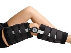 Двухсторонний гонартроз коленных суставов 2 степени: виды и развитие заболевания, симптомы и клиническая картина, особенности диагностики и лечения болезни