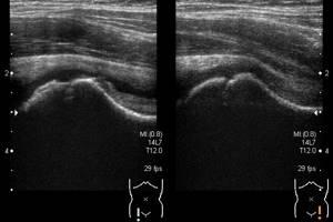 УЗИ тазобедренных суставов: особенности подготовки к процедуре и проведение, когда назначается, результаты, общие сведения
