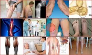 Дельта для эффективного лечения суставов: принцип действия аппарата, эффективность, когда рекомендуется, что лечит, правила применения и отзывы