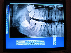 Воспаление челюстного сустава: причины и предрасположенность к заболеванию, специфические симптомы и методы диагностики, способы лечения и возможные осложнения