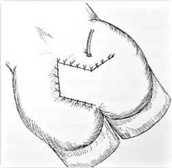 Киста копчика: причины образования и его виды, характерные симптомы и методы диагностики, способы удаления и реабилитационный период, отзывы пациентов о лечении