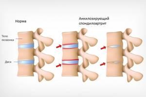 Артрит коленного сустава у детей: клиническая картина и признаки развития патологии, разновидности болезни и методы терапии, профилактические приемы и показания для операции