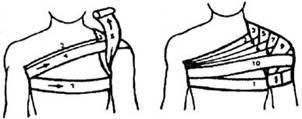 Колосовидная повязка: виды фиксации и подготовка к процедуре, техника наложения бинта, необходимые материалы и возможные ошибки, важные рекомендации