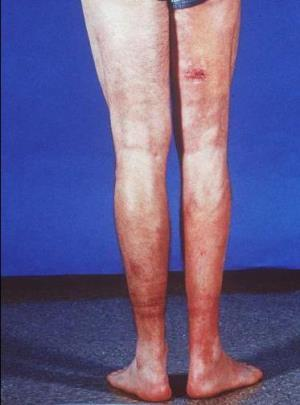 Эозинофильный (диффузный) фасциит: описание недуга, его симптомы и проявления, особенности диагностики болезни и методы борьбы