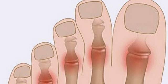 Болит большой палец на ноге: какие заболевания могут спровоцировать боль, способы лечения и снятия воспаления, к какому врачу обратиться для диагностики патологии