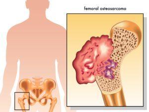 Остеосаркома ребер: как проявляется, симптомы, диагностика, лечение и профилактика