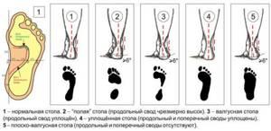 Почему болят ступни ног по утрам при наступании: основные причины, симптомы, способы диагностики и методы лечения