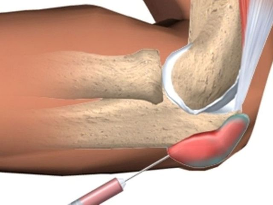 Остеонекроз: заболевания костей, суставов и мышц, причины заболевания, симптомы и способы лечения