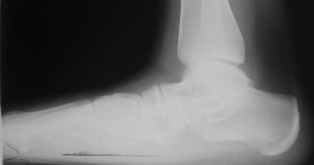 Подтаранный артроэрез: суть и основные преимущества методики, показания и техника проведения операции, процесс реабилитации и стоимость процедуры, отзывы пациентов