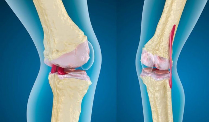 Остеоартроз плечевого сустава: общее описание и стадии заболевания, симптомы и выявление патологии, препараты и физиотерапия, мануальная терапия и оперативное вмешательство