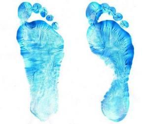 Плоскостопие: степени и виды патологии, причины ее развития и первые симптомы, методы диагностики, современные и народные методы лечения, важные рекомендации