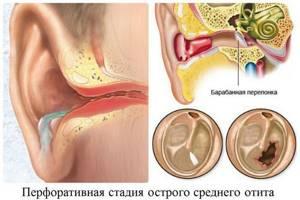 Остит: отчего случается воспаление, виды, симптомы и лечение, профилактика ушных заболеваний