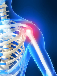 Воспаление плечевого сустава: причины патологии, характерные признаки и методы диагностики, современные и народные методы лечения, физиотерапевтические мероприятия