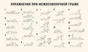 Упражнения при грыже поясничного отдела для укрепления позвоночника: польза гимнастики и комплексы для дома, правила выполнения и противопоказания к занятиям